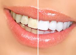 Blanchiment des dents à Aix-en-Provence