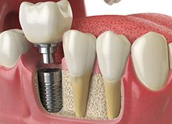 Implants dentaires à Aix-en-Provence