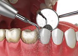 dentiste, carie, détartrage, hygiène dentaire