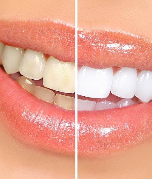 Soins esthétique, blanchiment des dents, éclaircissement, facettes