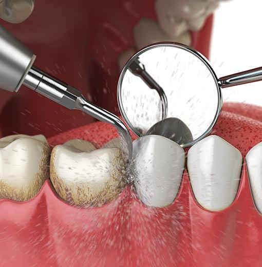 soins dentaires courants, détartrage, carie, dévitalisation